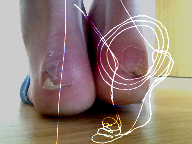 Cowboot blisters. Photo by Barbara Adler. Drawing by Brit Bachmann